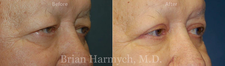 eyelid surgery cleveland blepharoplasty cleveland 2c