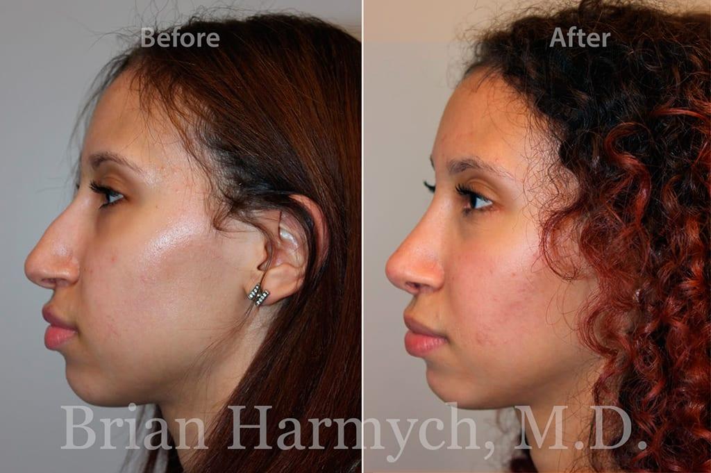 rhinoplasty nose job cleveland ohio 16
