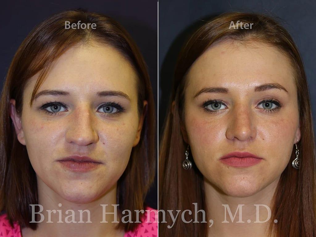 rhinoplasty nose job cleveland ohio 7