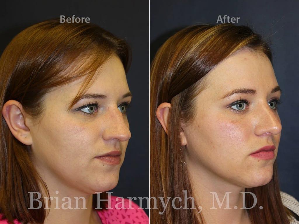 rhinoplasty nose job cleveland ohio 8