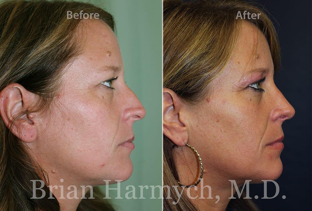 rhinoplasty nose job cleveland ohio 2
