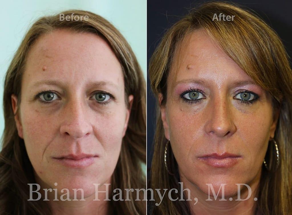 rhinoplasty nose job cleveland ohio 1