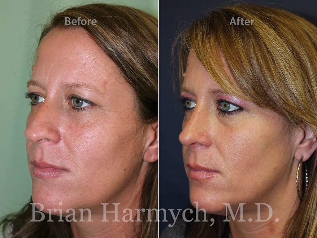 rhinoplasty nose job cleveland ohio 3