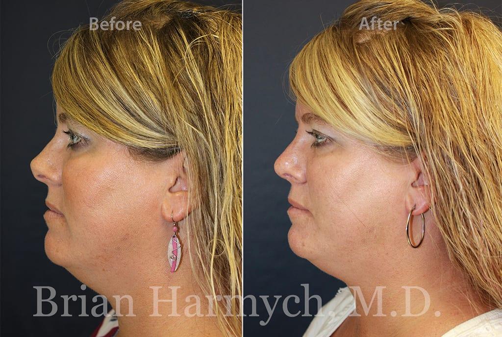 rhinoplasty nose job cleveland ohio 13