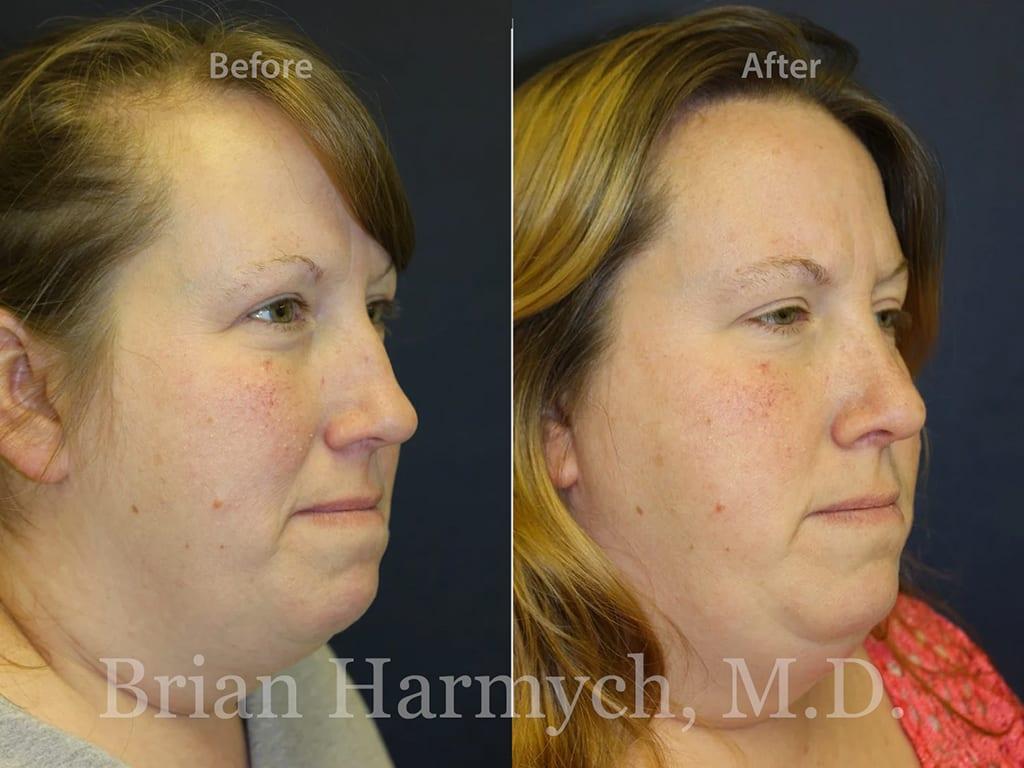 rhinoplasty nose job cleveland ohio 12