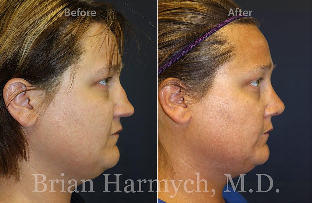 rhinoplasty nose job cleveland ohio 9