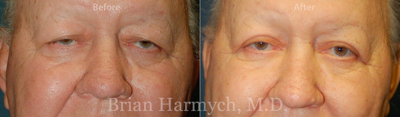 eyelid surgery cleveland blepharoplasty cleveland 2