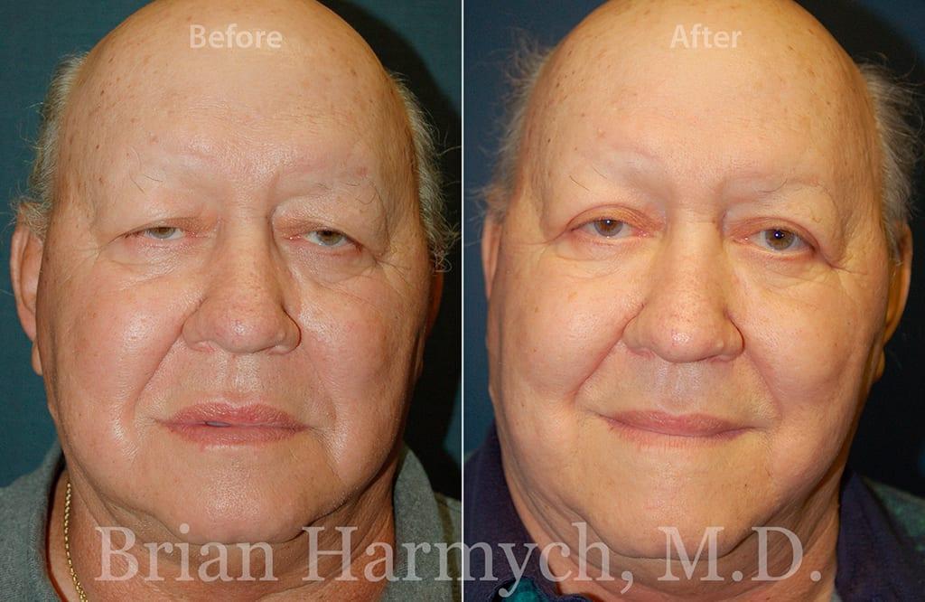 eyelid surgery cleveland blepharoplasty cleveland 2b