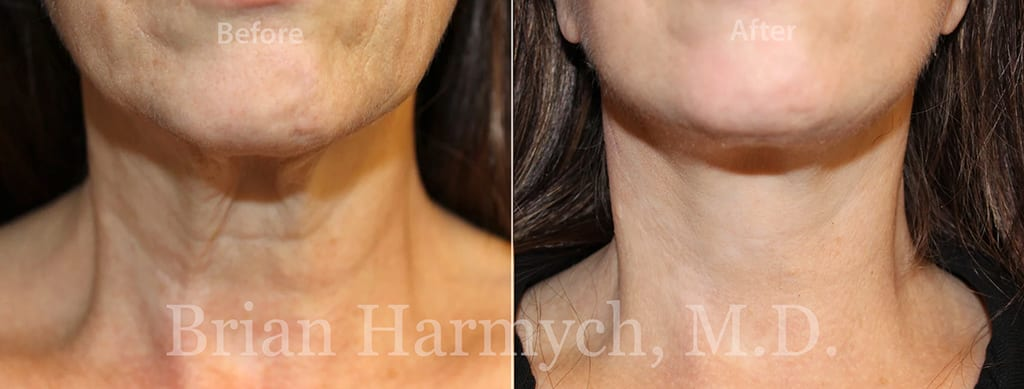 facelift in cleveland plastic surgery 1b