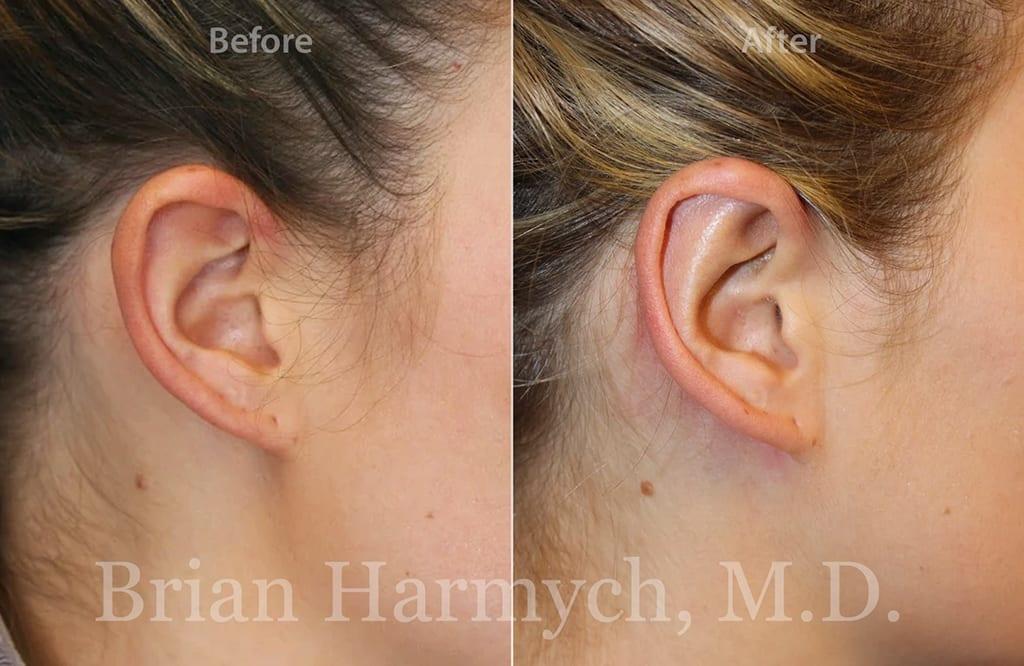 otoplasty ear surgery cleveland ohio 1c