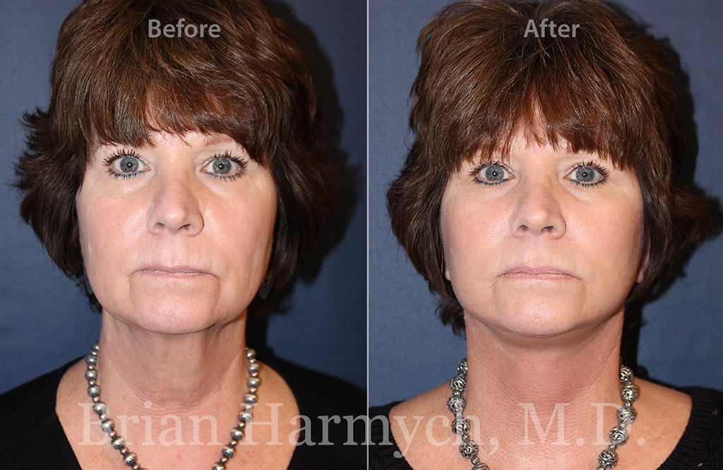 facelift procedure in cleveland, ohio