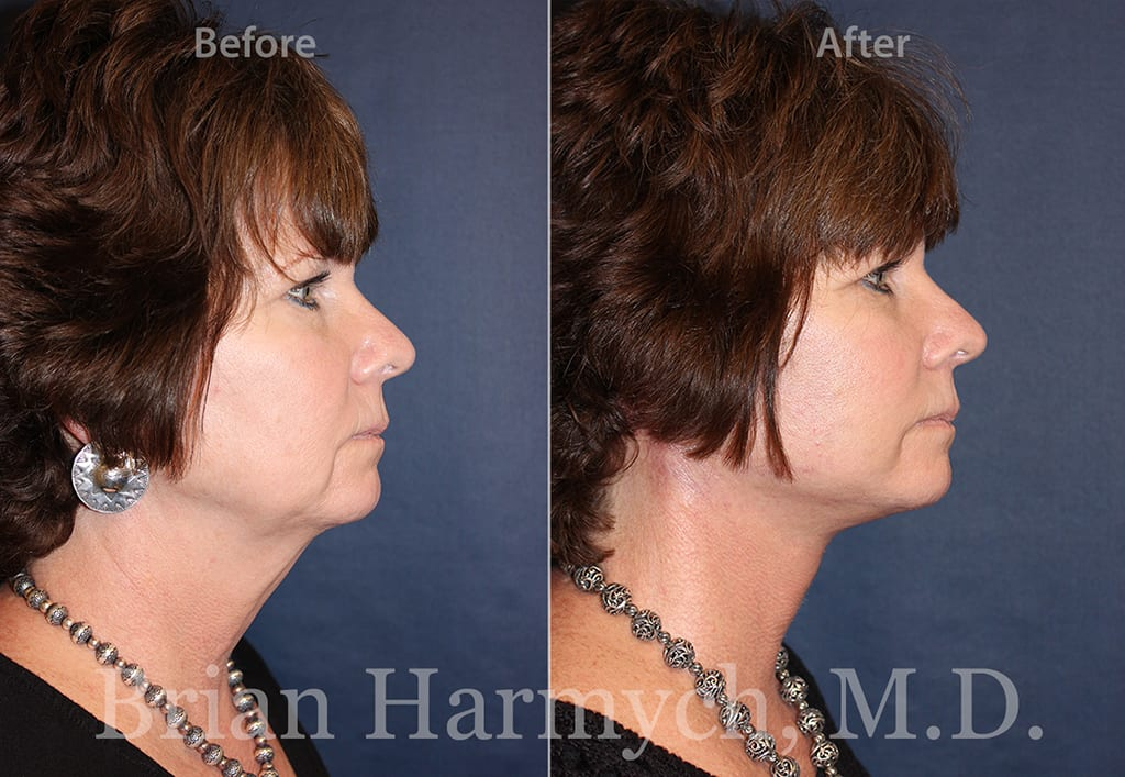 facelift and neck liposuction in cleveland ohio
