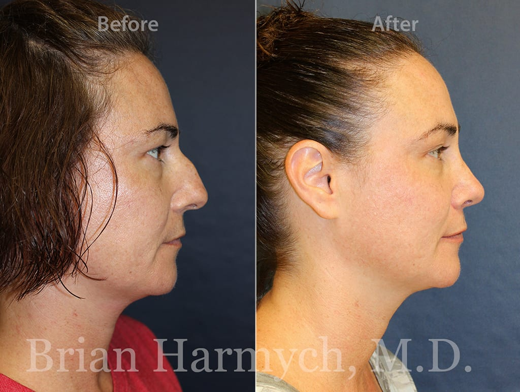 rhinoplasty nose job cleveland ohio