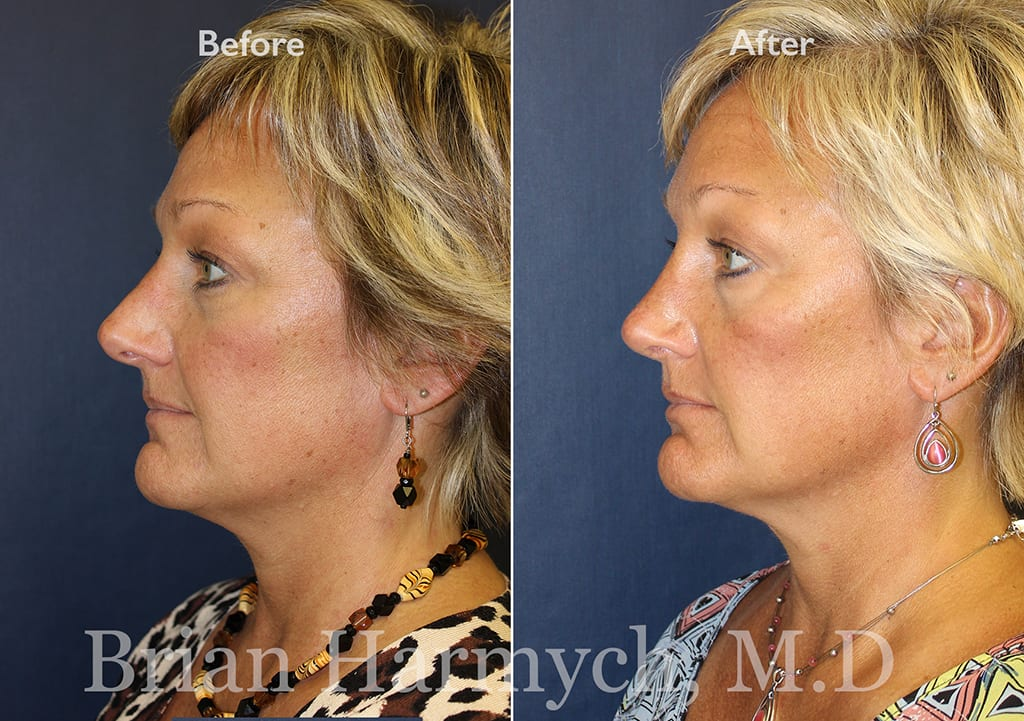 revision rhinoplasty and nose job correction in Cleveland, OH