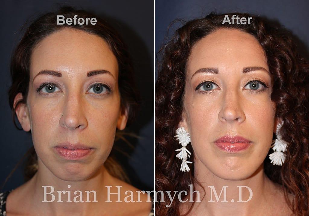 best chin implant surgeon Cleveland Ohio plastic surgeon Northeast Ohio