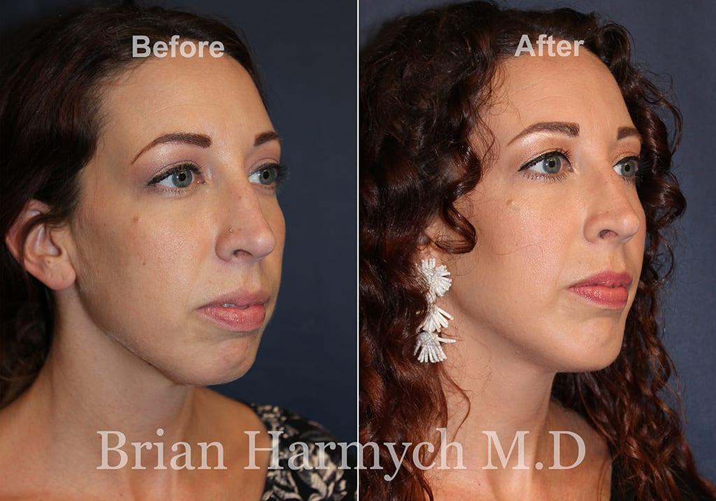 best chin implant surgeon Cleveland Ohio