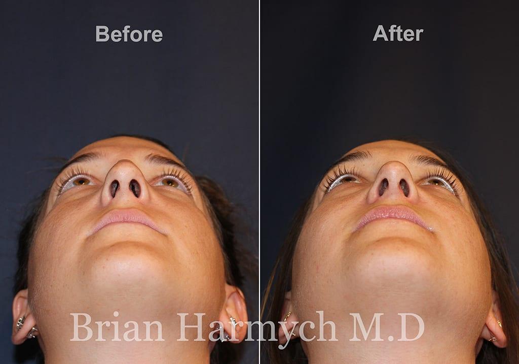 nosejob_rhinoplasty_plastic surgery_cleveland_ohio