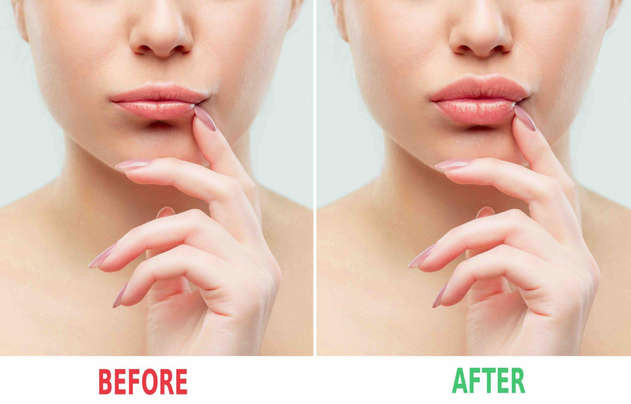 Lip Augmentation Surgery in Cleveland, Ohio - Best Lip Surgeon in Cleveland